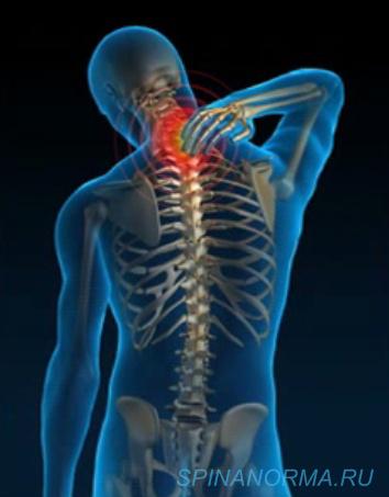 Может ли болеть шея при сотрясении мозга