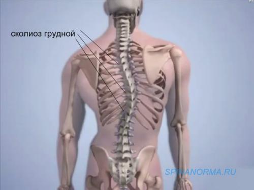 Деформация позвоночника : SpinaNorma.ru