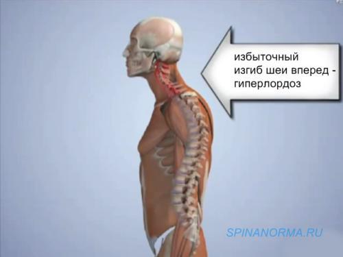 Круглая осанка спины