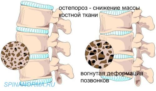 диффузный остеохондроз позвоночника Диффузный остеохондроз шейного отдела
