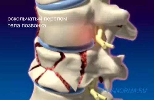 Травма позовночника : SpinaNorma.ru